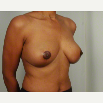 45-54 year old woman treated with Breast Lift after 3026501