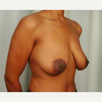 45-54 year old woman treated with Breast Lift before 3026501