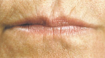 Facial Fillers- Lips before 566722