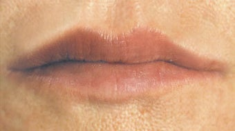 Facial Fillers- Lips after 566722
