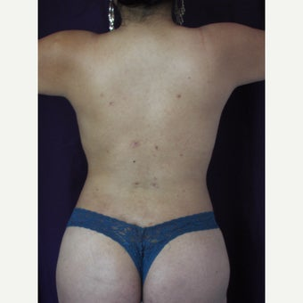 35-44 year old woman treated with liposuction after 2261616