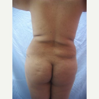 35-44 year old woman treated with liposuction before 2261616