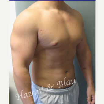 18-24 year old man treated with Male Breast Reduction before 3332934