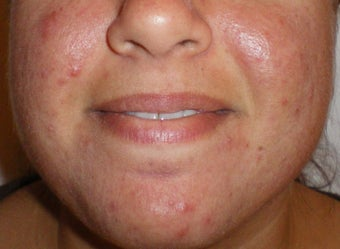 Photodynamic Therapy for Acne before 110229