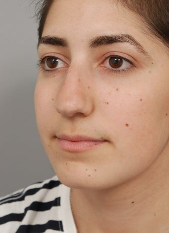 Rhinoplasty performed on 22 year old woman to correct a twisted and uneven nose  before 2856130