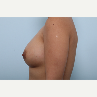Breast Augmentation after 3339935