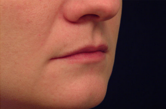 Restylane for lip augmentation 82764