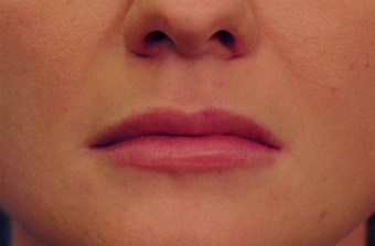 Restylane for lip augmentation after 82764