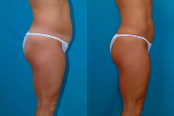 32-year-old woman treated with Liposuction. after 341944