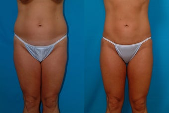 32-year-old woman treated with Liposuction. before 341944