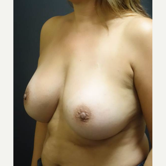35-44 year old woman treated with Breast Augmentation after 3457929