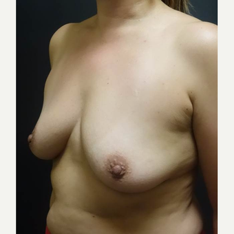 35-44 year old woman treated with Breast Augmentation before 3457929
