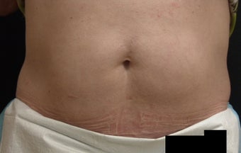 Coolsculpting after 417595