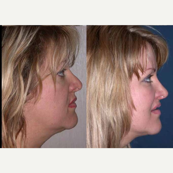 55-64 year old woman treated with Facelift after 3602547