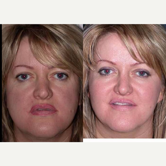 55-64 year old woman treated with Facelift before 3602547