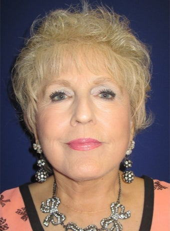 69 year old woman treated with Facelift and full face laser resurfacing