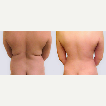 35-44 year old woman treated with Liposuction before 2849495