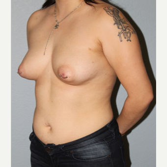 25-34 year old woman treated with Breast Augmentation before 3332654