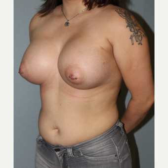 25-34 year old woman treated with Breast Augmentation after 3332654
