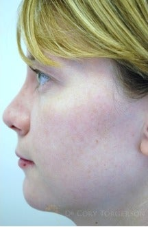 25-34 year old woman treated with Rhinoplasty after 3259298