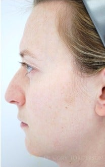 25-34 year old woman treated with Rhinoplasty before 3259298