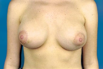 Breast implant removal and replacement with breast lift after 174824