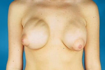 Breast implant removal and replacement with breast lift before 174824