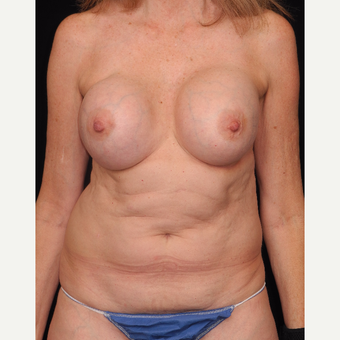 55-64 year old woman with DIEP flap breast reconstruction before 3742085
