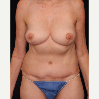 55-64 year old woman with DIEP flap breast reconstruction after 3742085