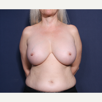 55-64 year old woman treated with Breast Implant Removal ( View 1 of 2)