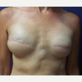 45-54 year old woman treated with Breast Reconstruction after 3196048