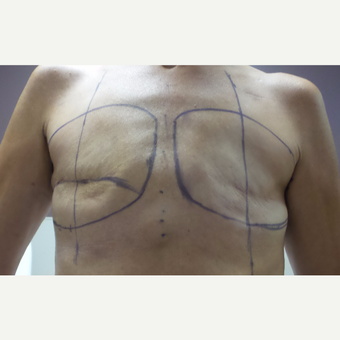 45-54 year old woman treated with Breast Reconstruction before 3196048