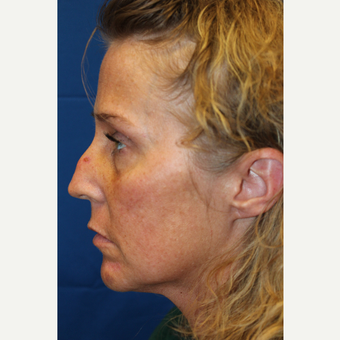 35-44 year old woman treated with Revision Rhinoplasty before 3644999