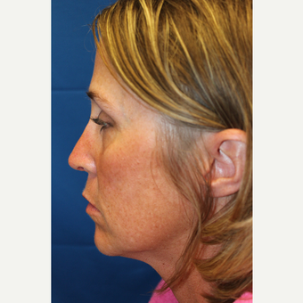 35-44 year old woman treated with Revision Rhinoplasty after 3644999