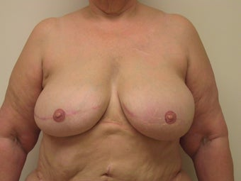 Breast Reconstruction after mastectomy after 1103492