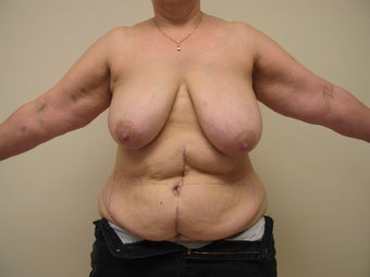 Breast Reconstruction after mastectomy before 1103492