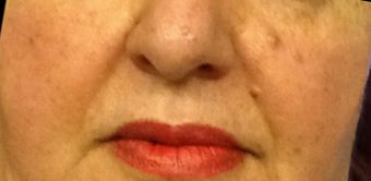 45-54 year old woman treated with Restylane Lyft before 3482126