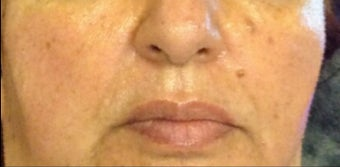 45-54 year old woman treated with Restylane Lyft after 3482126