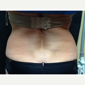 45-54 year old woman treated with CoolSculpting after 3702772