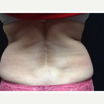 45-54 year old woman treated with CoolSculpting before 3702772
