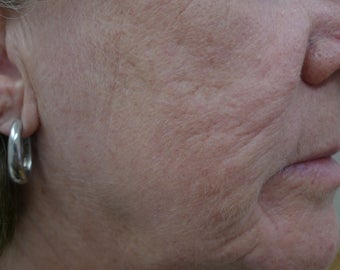 Results with one Fractional Treatment  after 1424002