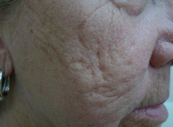Results with one Fractional Treatment  before 1424002