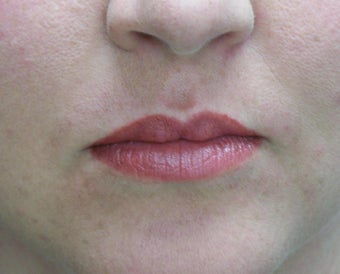 Lip Augmentation with fat transfer after 981773