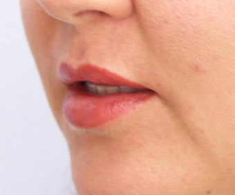 Lip Augmentation with fat transfer 981773
