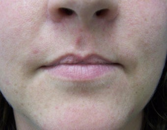 Lip Augmentation with fat transfer before 981773