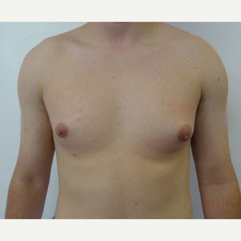25-34 year old man treated with Male Breast Reduction before 3501866