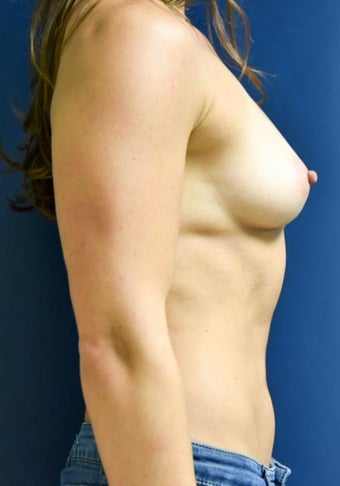 25-34 year old woman treated with Breast Augmentation 2270428