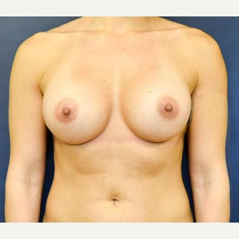 25-34 year old woman treated with Breast Augmentation after 2270428