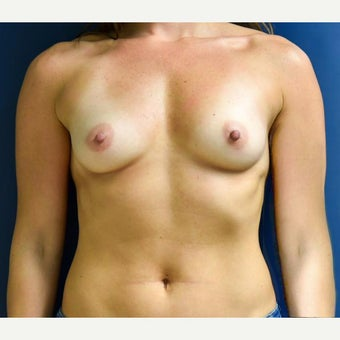25-34 year old woman treated with Breast Augmentation before 2270428