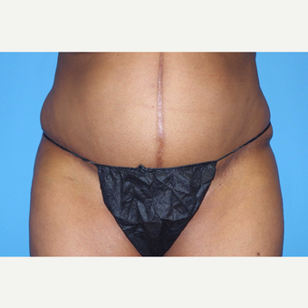 45-54 year old woman treated with Panniculectomy; 15 months post-op after 2735604
